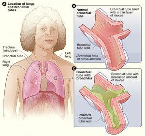 Lungs / Bronchial tubes with Bronchitis